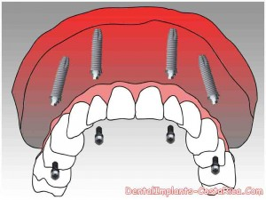 all-on-4-dental-implants-in-cr